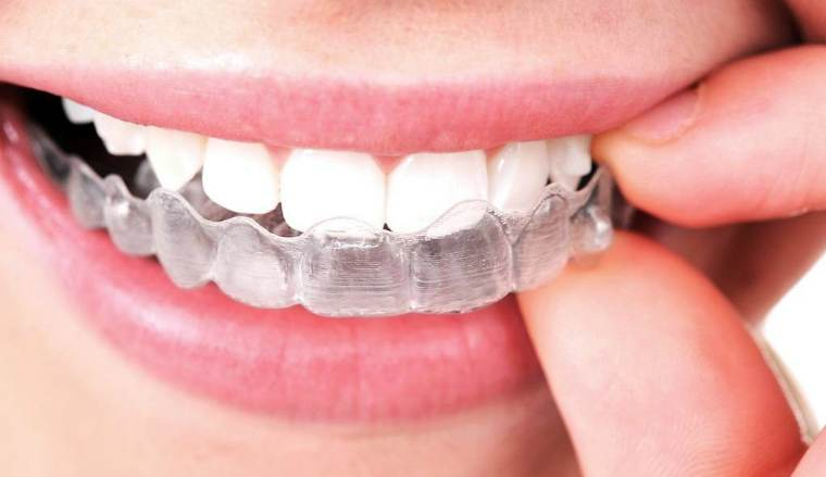 Гель для отбеливания зубов