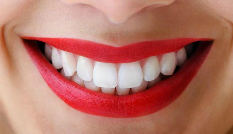 Отбеливание зубной эмали в домашних условиях