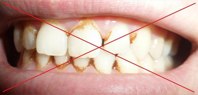 В каких случаях нежелательно отбеливать зубы