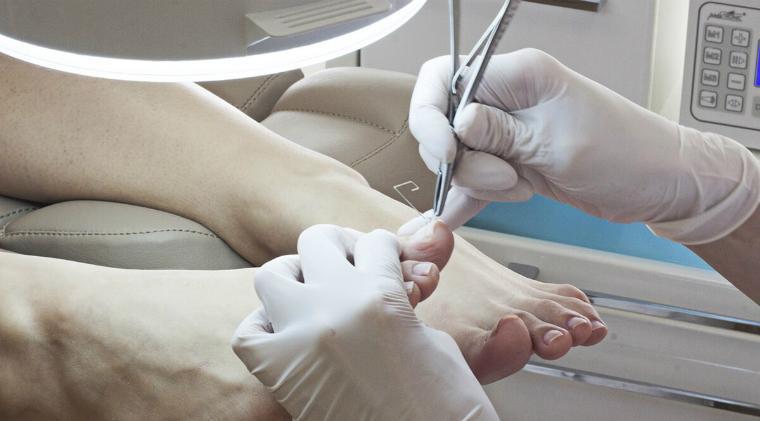 Хирургическое лечение грибка ногтей