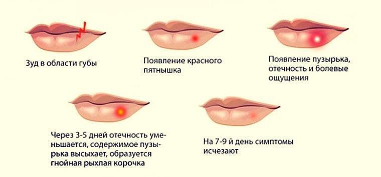 Стадии герпеса на губах