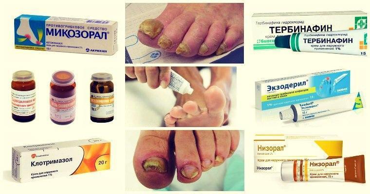 Лекарство от грибка на ногах таблетки