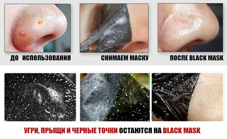 Черные точки на носу