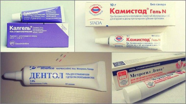 Гели от зубной боли для детей и взрослых