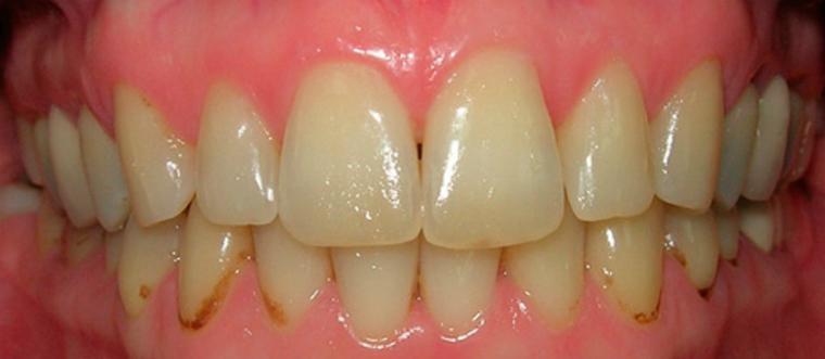 Причины образования зубного налета