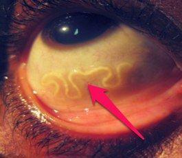 Какие симптомы при глистах у взрослых