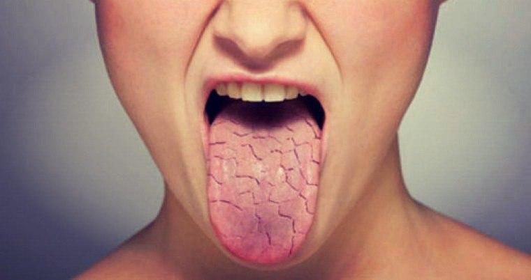 Причины высыхания ротовой полости