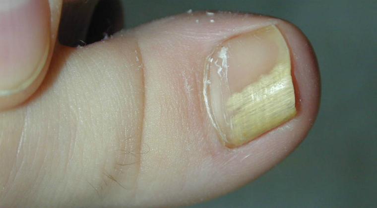 Первые симптомы грибка ногтей на ногах