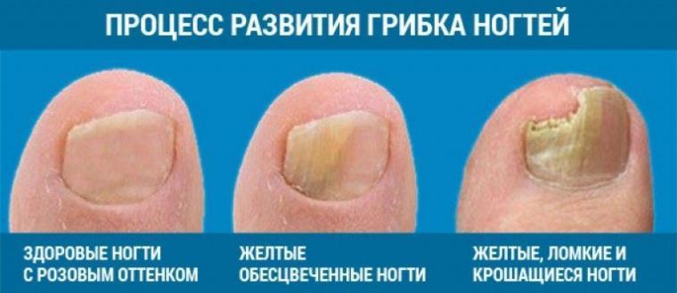 Процесс развития грибка ногтей на ногах