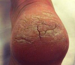 Болит трещина на пятке чем лечить
