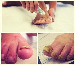 Дешевое лекарство от грибка ногтей на ногах что лучше
