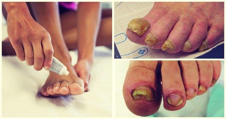 Лучшая мазь от грибка ногтей на ногах