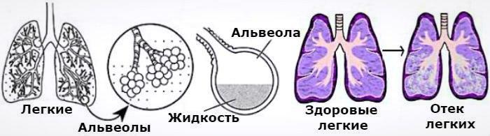 Классификация отека легких