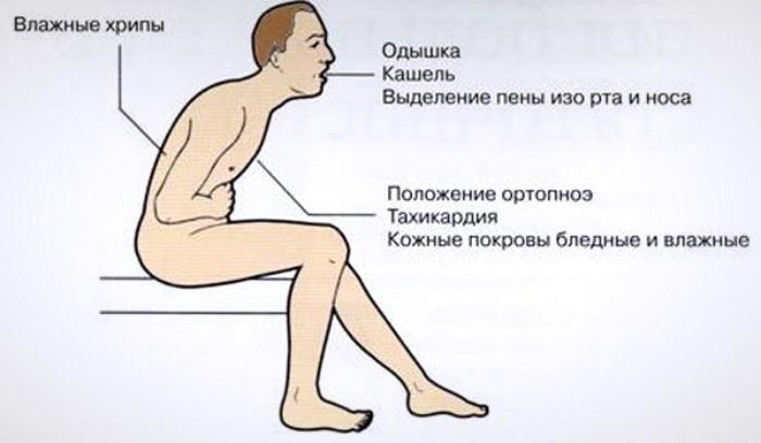 Первые признаки отека легких