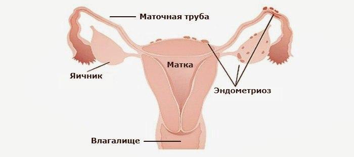 Классификация эндометриоза