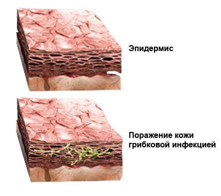 Что такое грибок