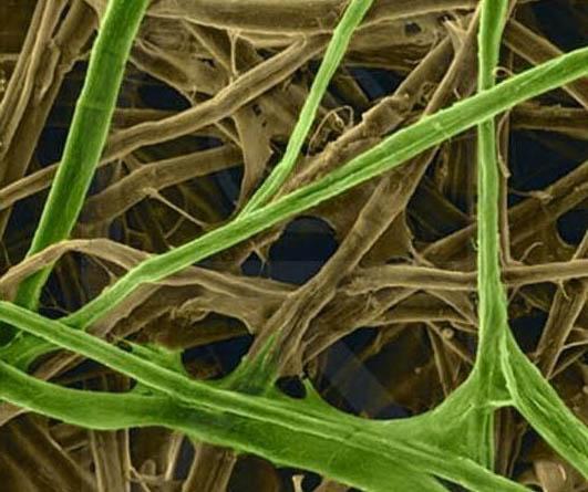 целлюлоза растений полезна для похудения