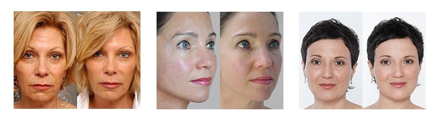 Золотая маска Cledbel фото до и после
