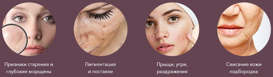 кледбел-проблемы кожи