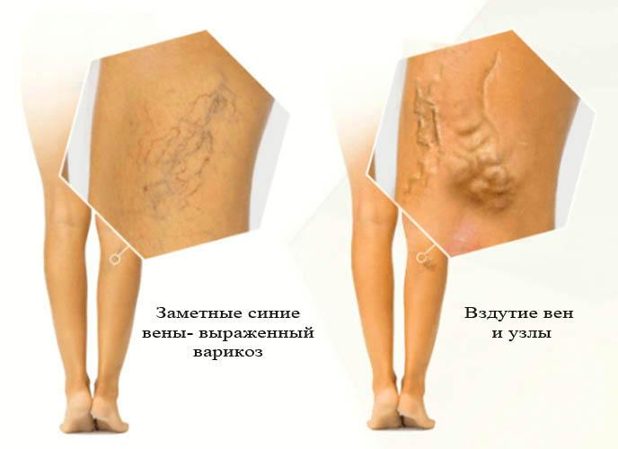 варикоз 3 стадия- бег противопоказан