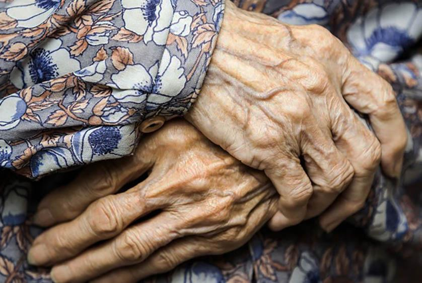 сухая кожа возрастные изменения