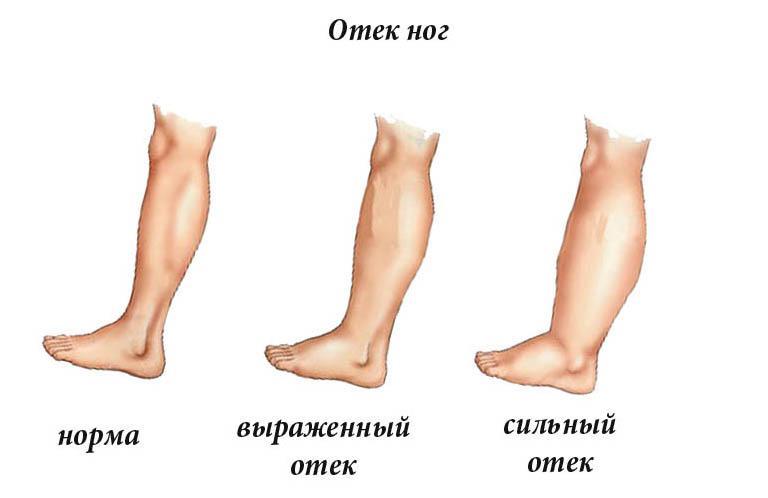 Отек ног - стадии