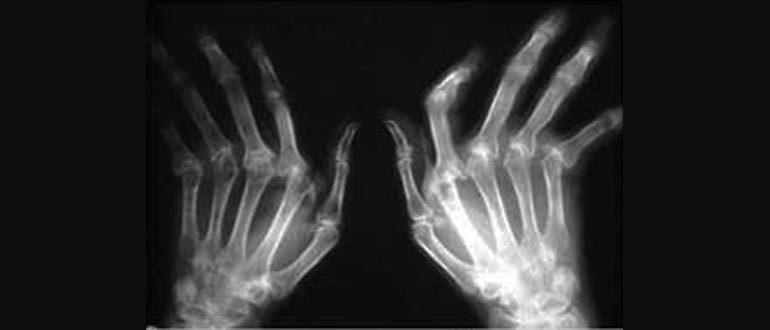 Методы диагностики и лечения ревматоидного артрита