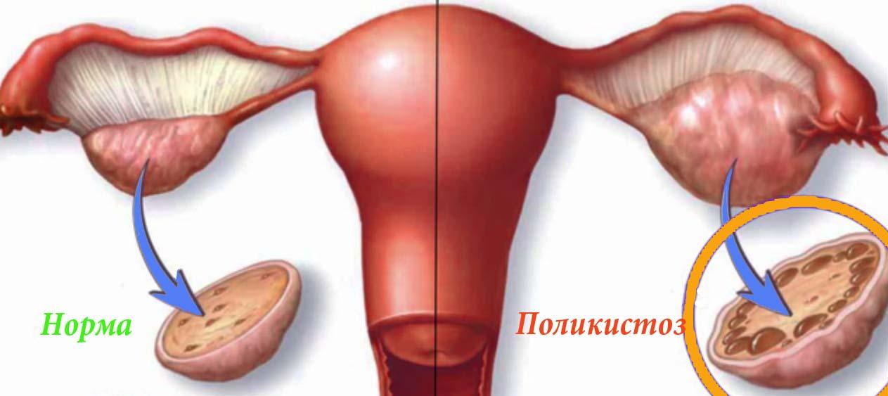 Синдром поликистоза яичников фото