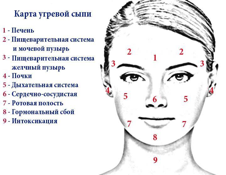 карта угревой сыпи на лице