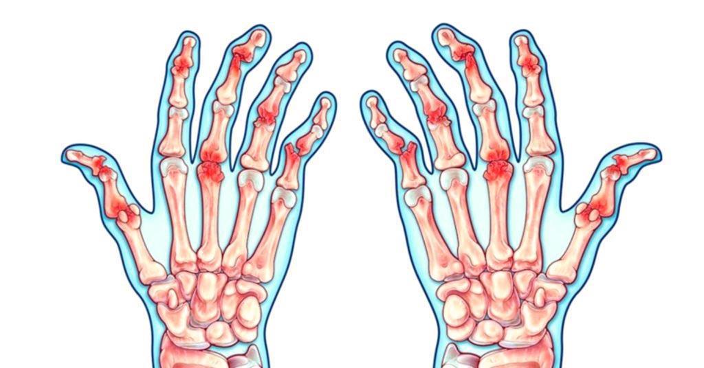 Псориатический артрит - симптомы, диагностика и методы лечения