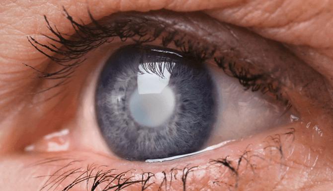 Что такое катаракта и почему она появляется