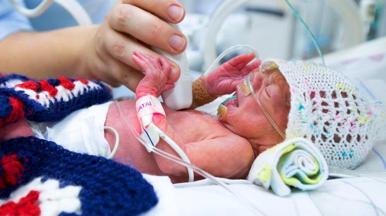Малыш, родившийся на 28 нед.