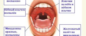 герпесная (герпетическая) ангина - симптомы